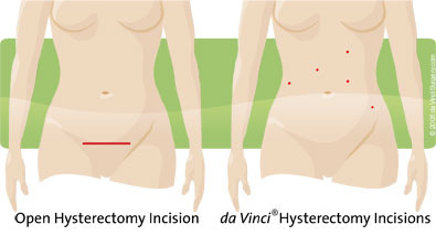 Hysterectomy img 1